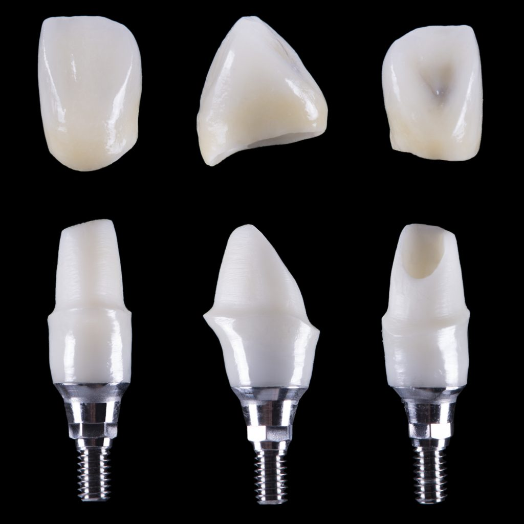 zirconia crowns vs porcelain crowns