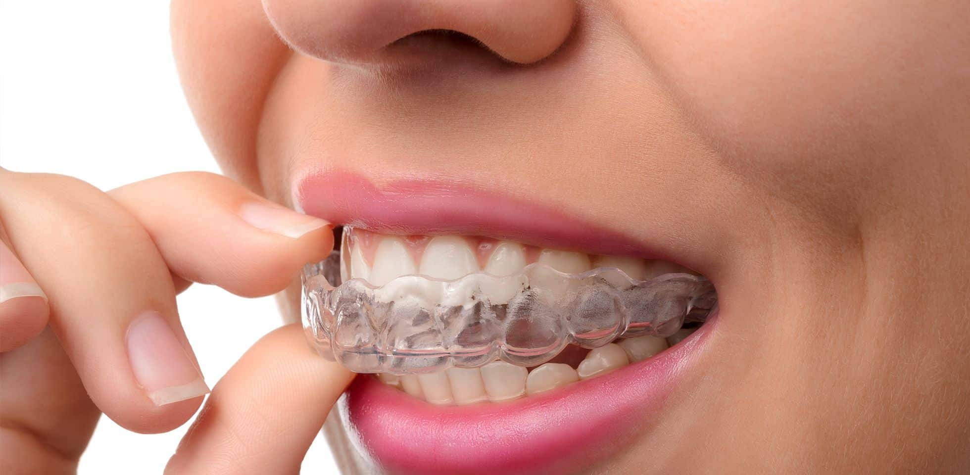 How Much Does Invisalign Cost in NYC?