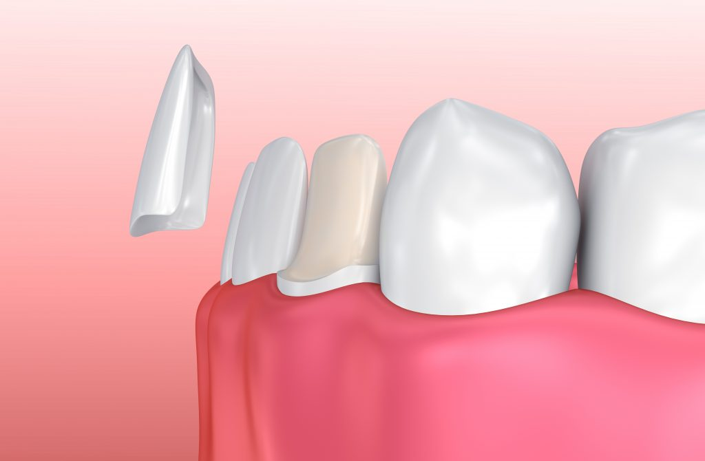 what are porcelain veneers