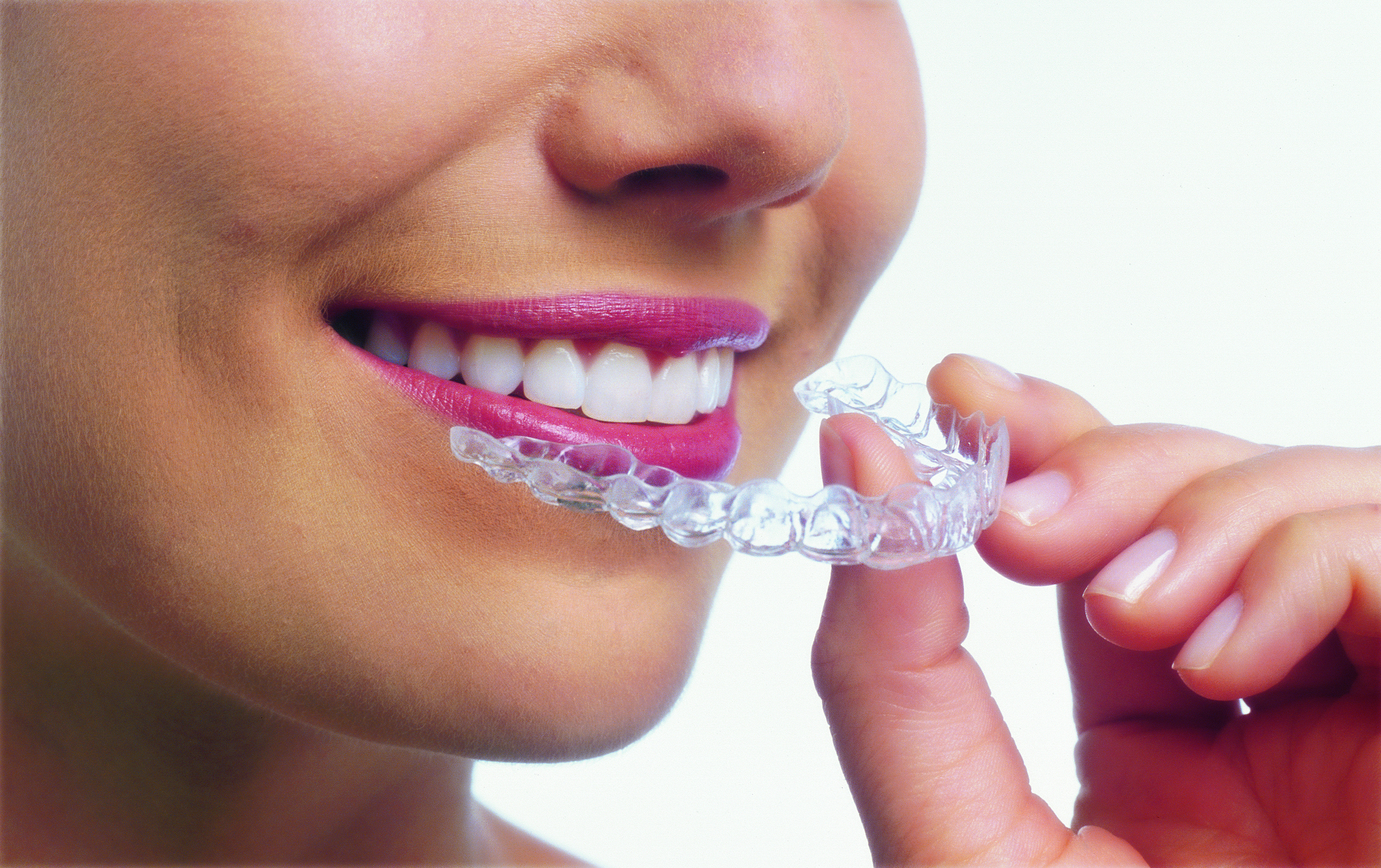 How Does The Invisalign Process Work?