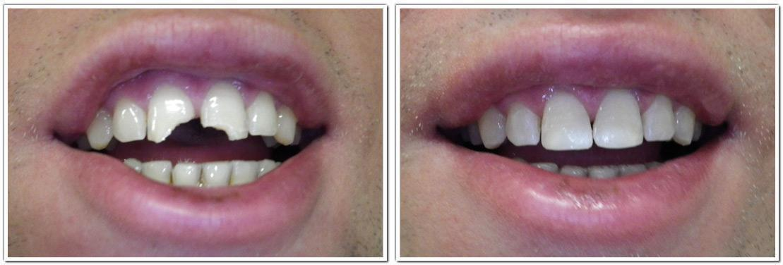 dental bonding nyc cosmetic dentistry before and after