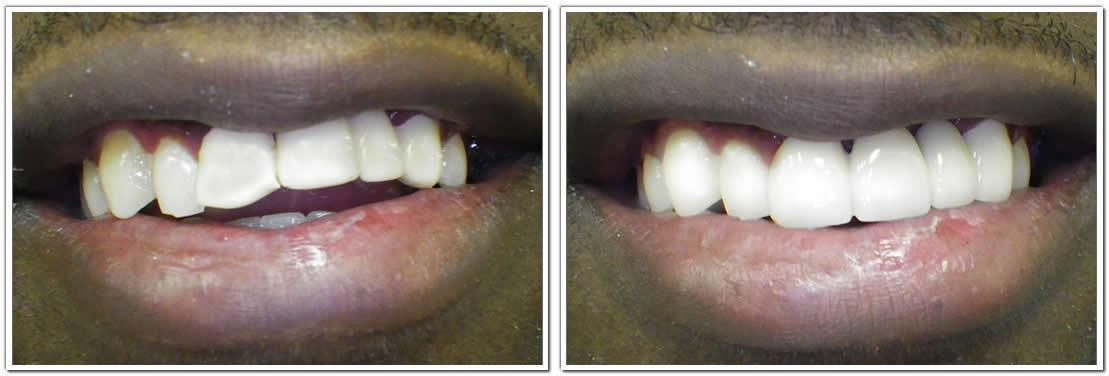 dental crowns nyc cosmetic dentistry before and after