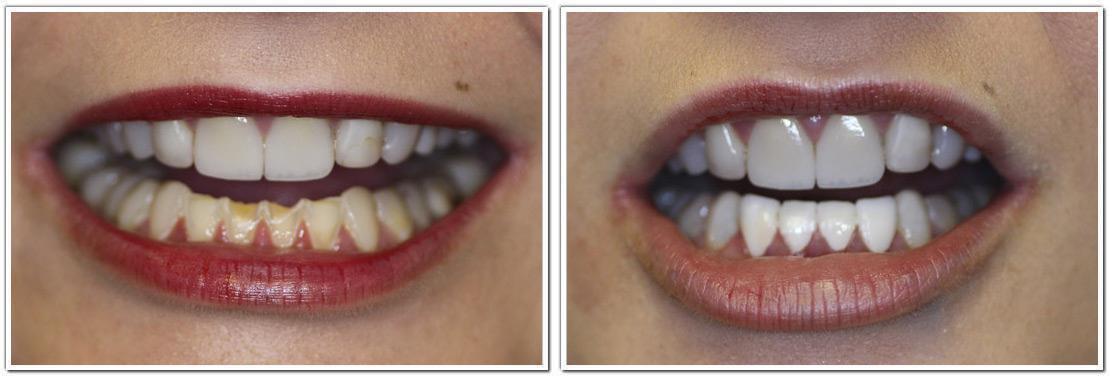 dental veneers nyc cosmetic dentistry before and after