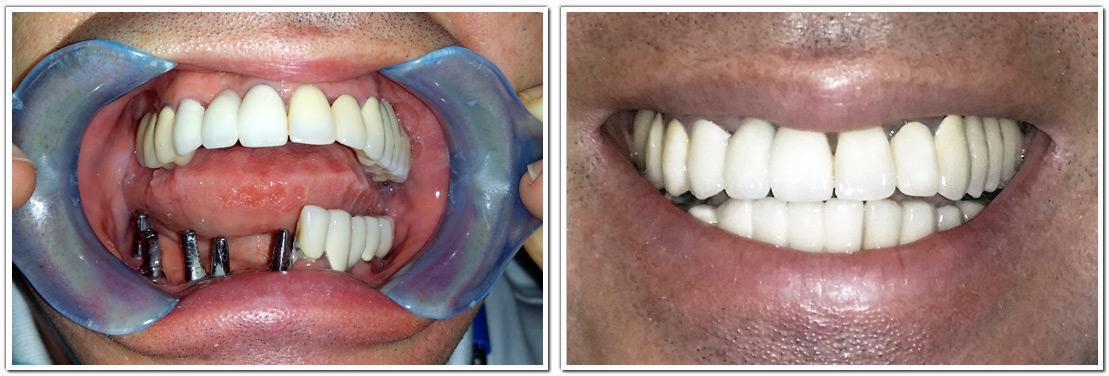 full mouth reconstruction nyc cosmetic dentistry before and after