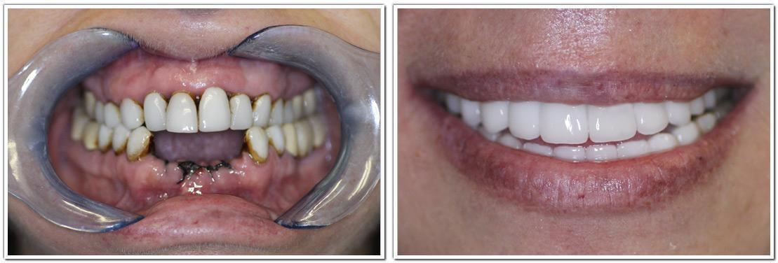 full_mouth_reconstruction_1