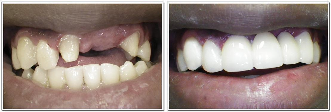 smile makeover nyc cosmetic dentistry before and after