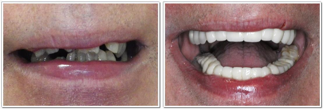nyc smile makeover cosmetic dentistry before and after