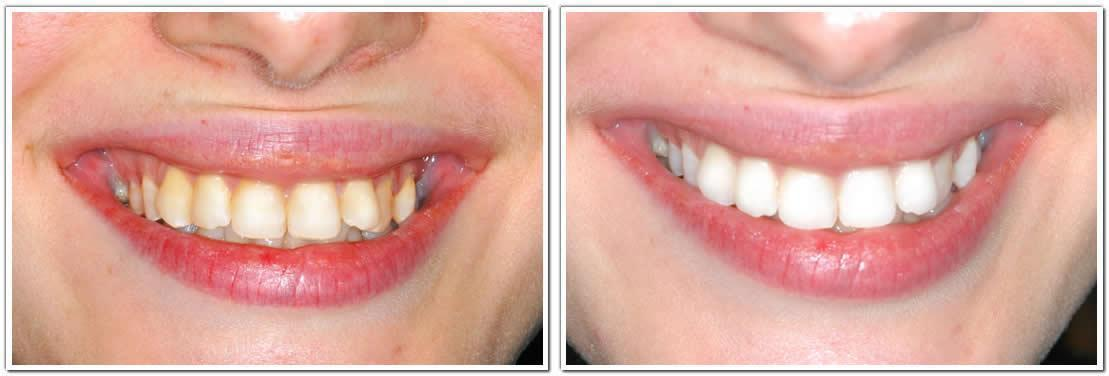 nyc professional teeth whitening cosmetic dentistry before and after