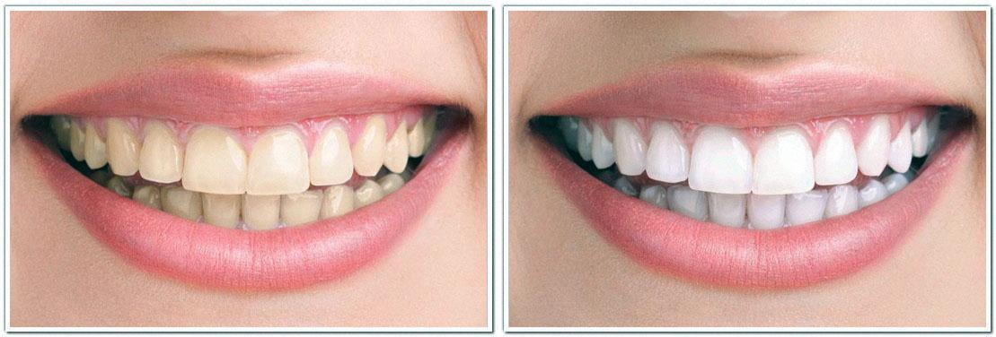 zoom teeth whitening cosmetic dentistry before and after