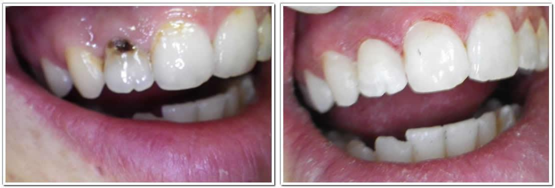 tooth colored fillings cosmetic dentistry before and after