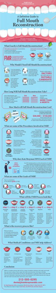 A visual guide to Full Mouth Reconstruction