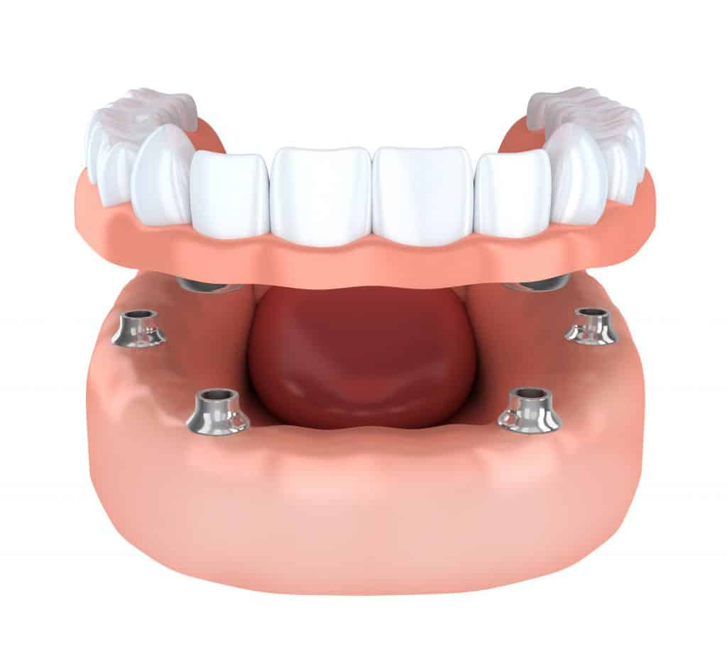 how to replace missing teeth in nyc: Implant-Supported Dentures