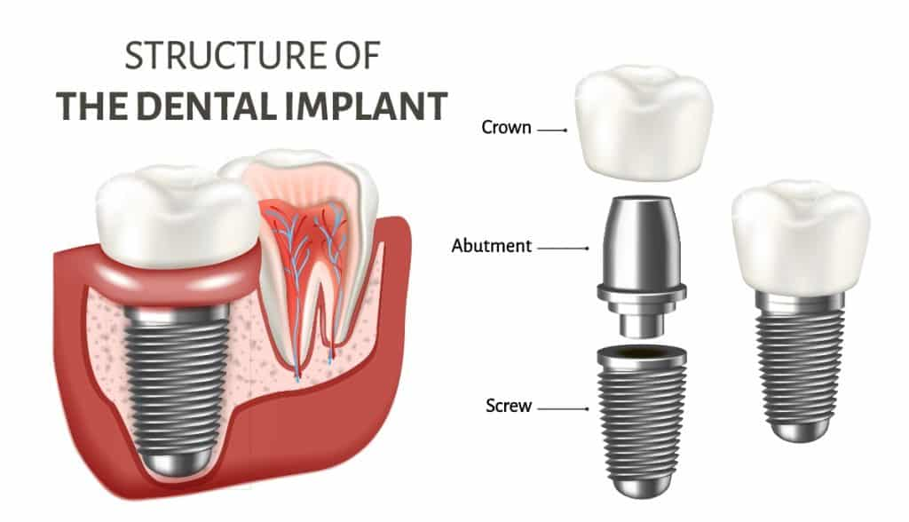 how to replace missing teeth in nyc (structure of the dental implant)