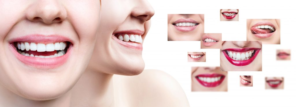 what is zoom whitening