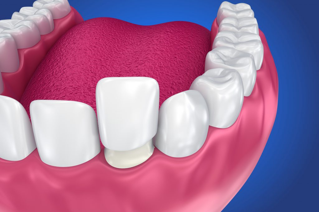 how much are porcelain veneers in nyc