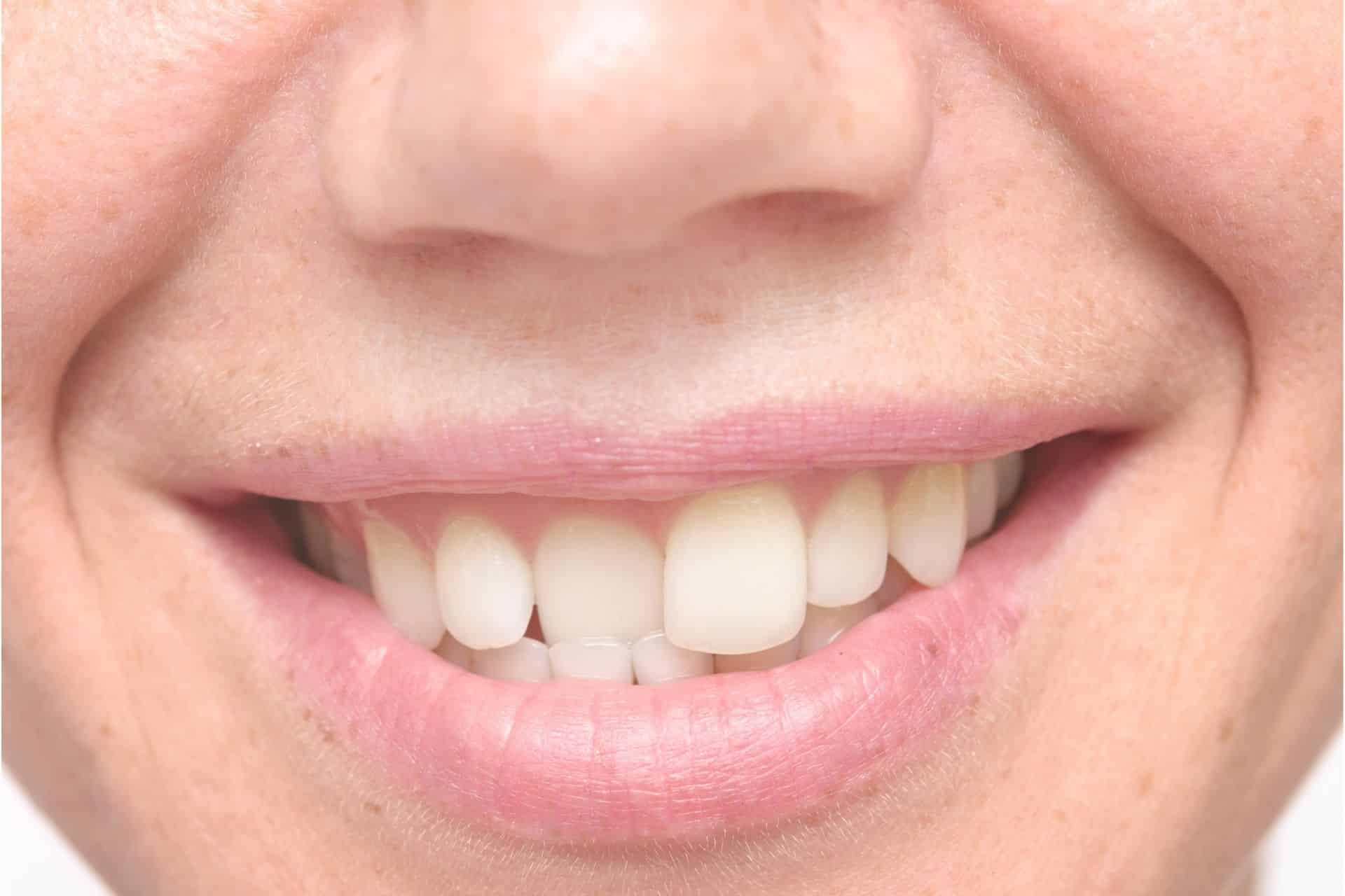 nyc invisalign consultation for crooked teeth