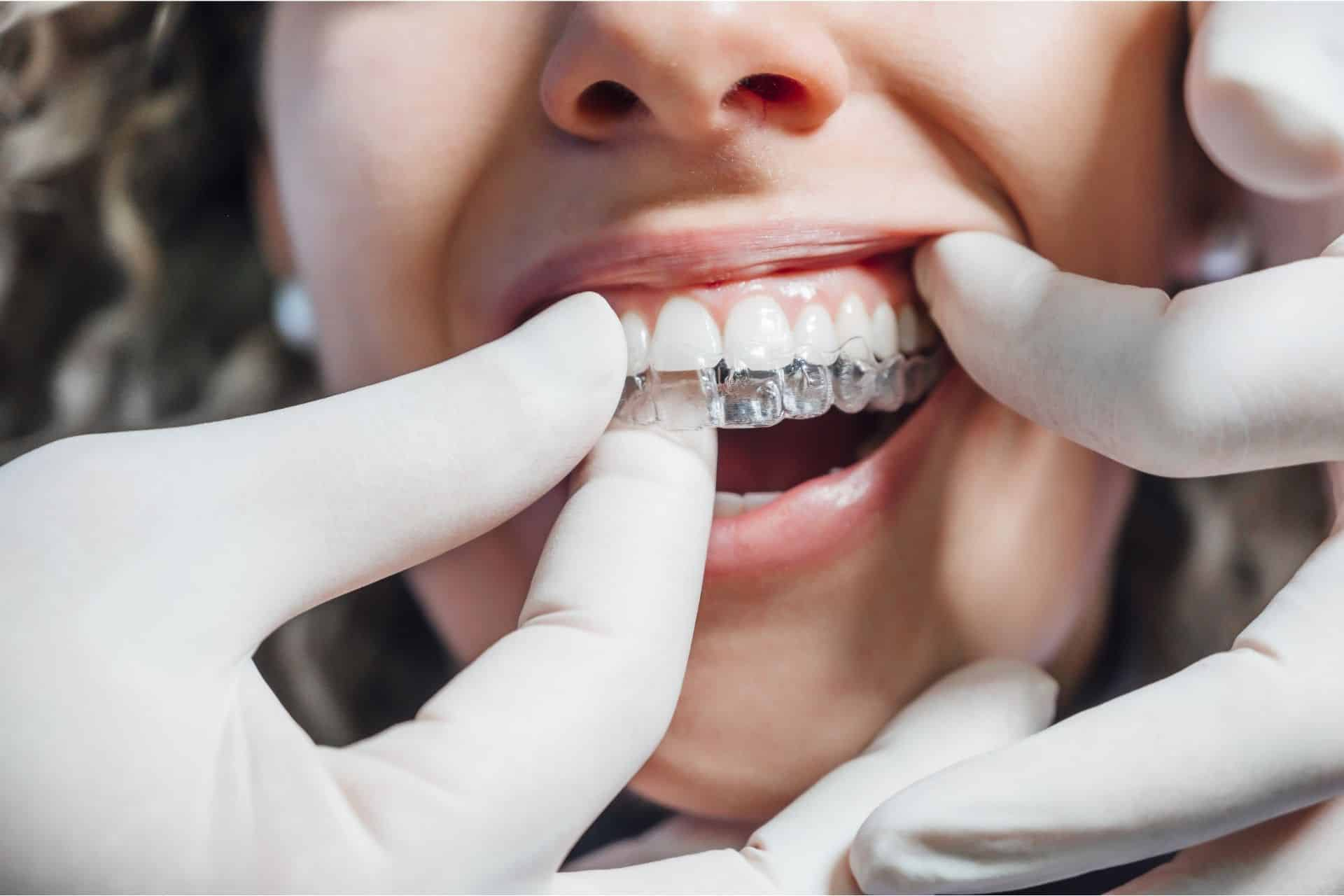 what happens after an invisalign consultation